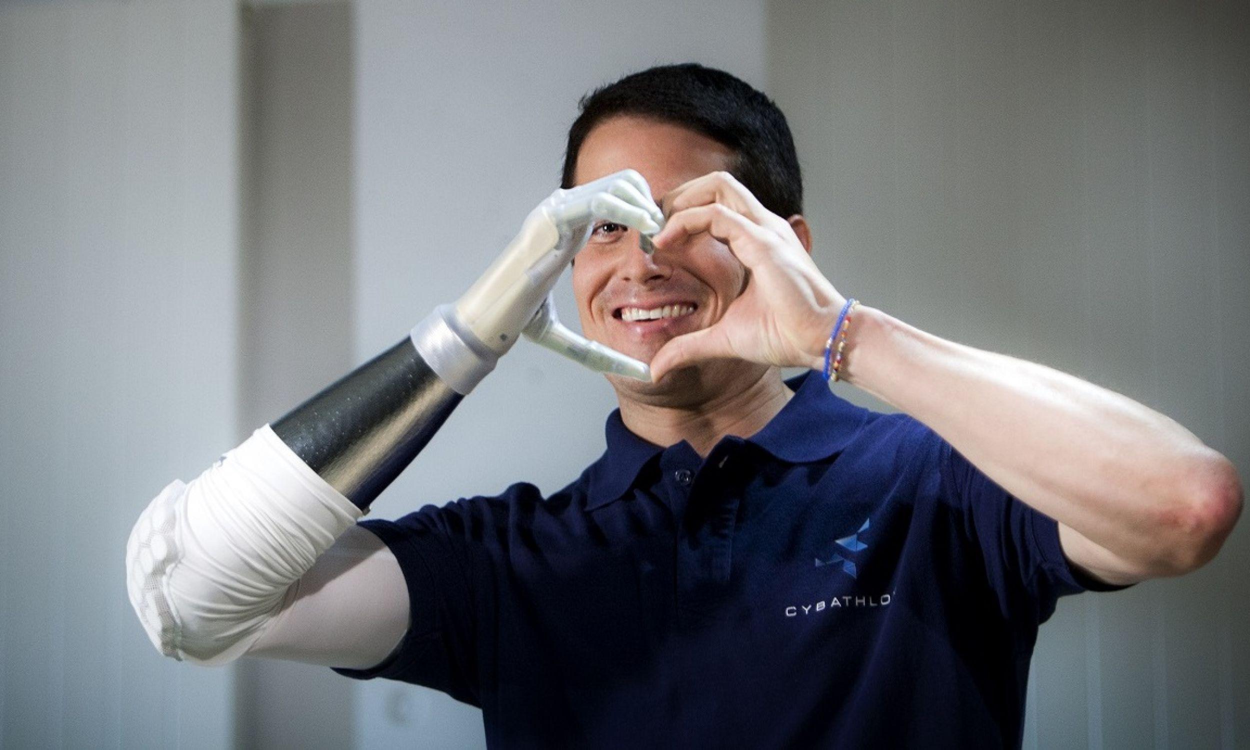 Michel Fornasier z bioniczną protezą dłoni, demonstruje mediom wynalazek Cybathlonu. Michel opanowywał umiejętność posługiwania się swoją bioniczną ręką ponad rok. Fot. BSIP / Universal Images Group via Getty Images