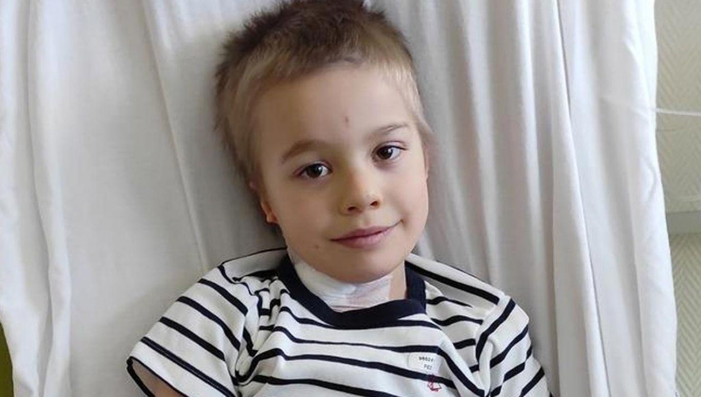 6-letni Jerzyk przeszedł operację (fot. siepomaga.pl)