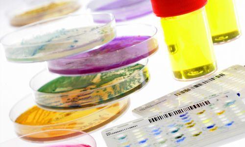 Płytki Petriego i bakteriologiczne płytki, umożliwiające identyfikację bakterii w próbce krwi, moczu i ślinie oraz automatyczne wykonanie testu wrażliwości na środki przeciwdrobnoustrojowe. Fot. BSIP / UIG za pośrednictwem Getty Images