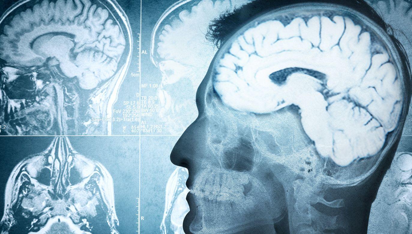 Każdy ludzki mózg dzięki neuronalnym połączeniom ma unikalną budowę i aktywność (fot. Shutterstock)