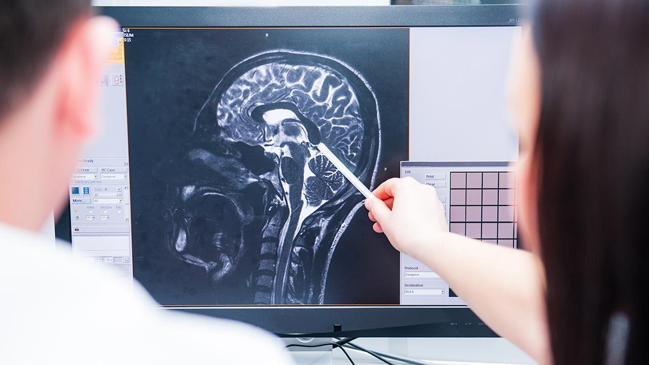 """Ludzka zdolność do """"powstrzymania się od natychmiastowej nagrody"""" ma podłoże w działaniu mózgu (fot. Shutterstock/Okrasiuk)"""