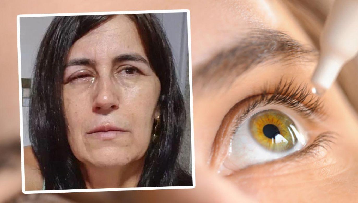 Klej poparzył kobiecie oko (fot. Shutterstock/ Kim Kuperkova; Twitter)